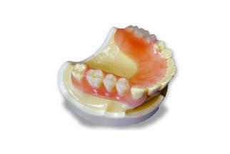 審美入れ歯