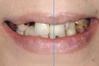 歯並びのバランス